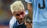 VAR-drama i Copa America: Banker modspiller til blods og får rødt kort
