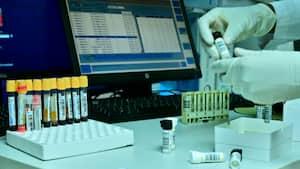 Antidoping Norge lancerer rullende testcenter