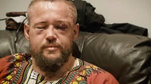 Se øjeblikket hvor Nicolas Dalby bryder sammen i tårer under interview - lørdag gør han comeback i UFC
