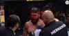 'Hold da kæft, mand' - Er det den værste brækkede næse i UFCs historie?